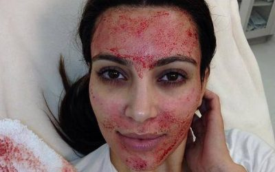 Vampire facial: What is it and why is it so popular?