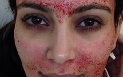 This $1,000 Facial Uses Your OWN Blood